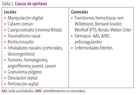 Tabla 1. Causas de epistaxis
