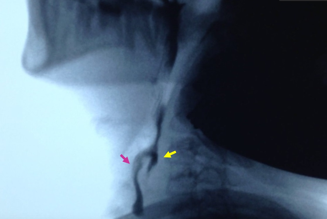 FAPap - Utilidad-de-la-videofluoroscopia-en-pediatria