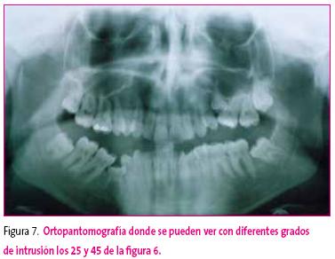 FAPap - La-erupcion-dental-normal-y-patologica